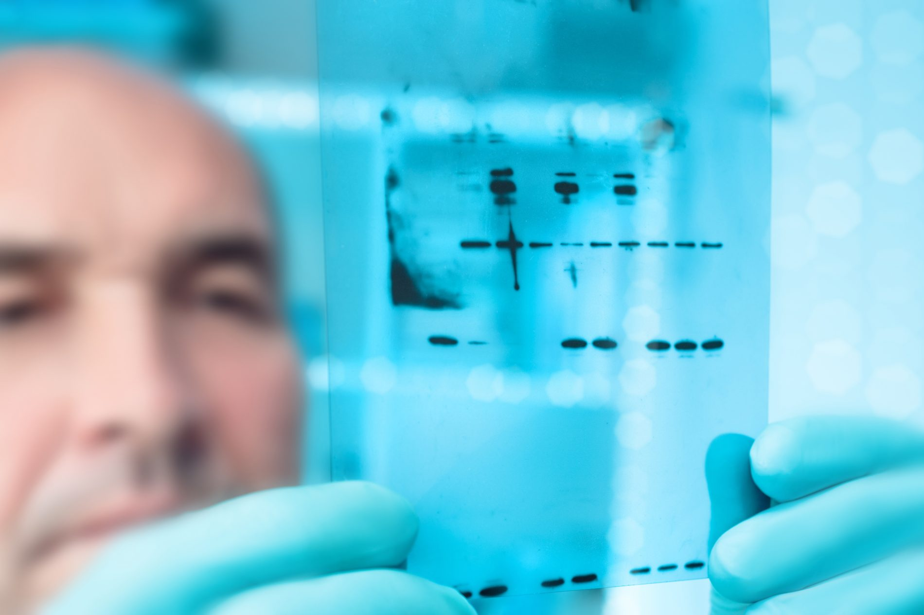 Biotech expert looks at western blot of recombinant proteins.